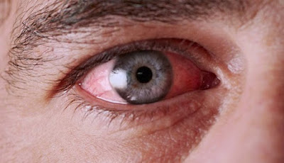 Blepharitis, Eye Allergy And Phlyctenulosis : 3 Differents Eye Problem, Causes And Treatments