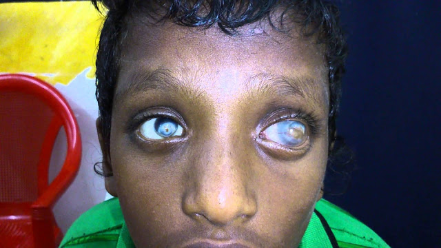 blind kid due to keratomalacia