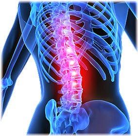 αιτίες για πόνο στην πλάτη