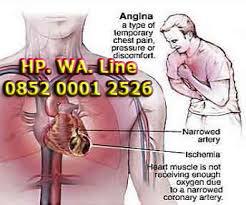 Cara Mengobati Penyempitan Pembuluh Darah di Jantung