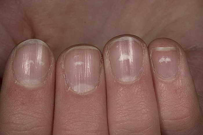 Cracked nails treatment - Awesome Nail
