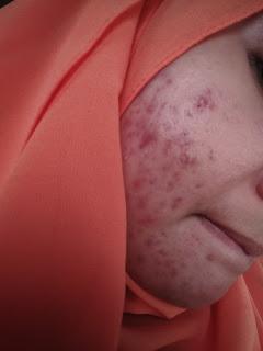 tips tukar skincare untuk kulit teramat sensitif!