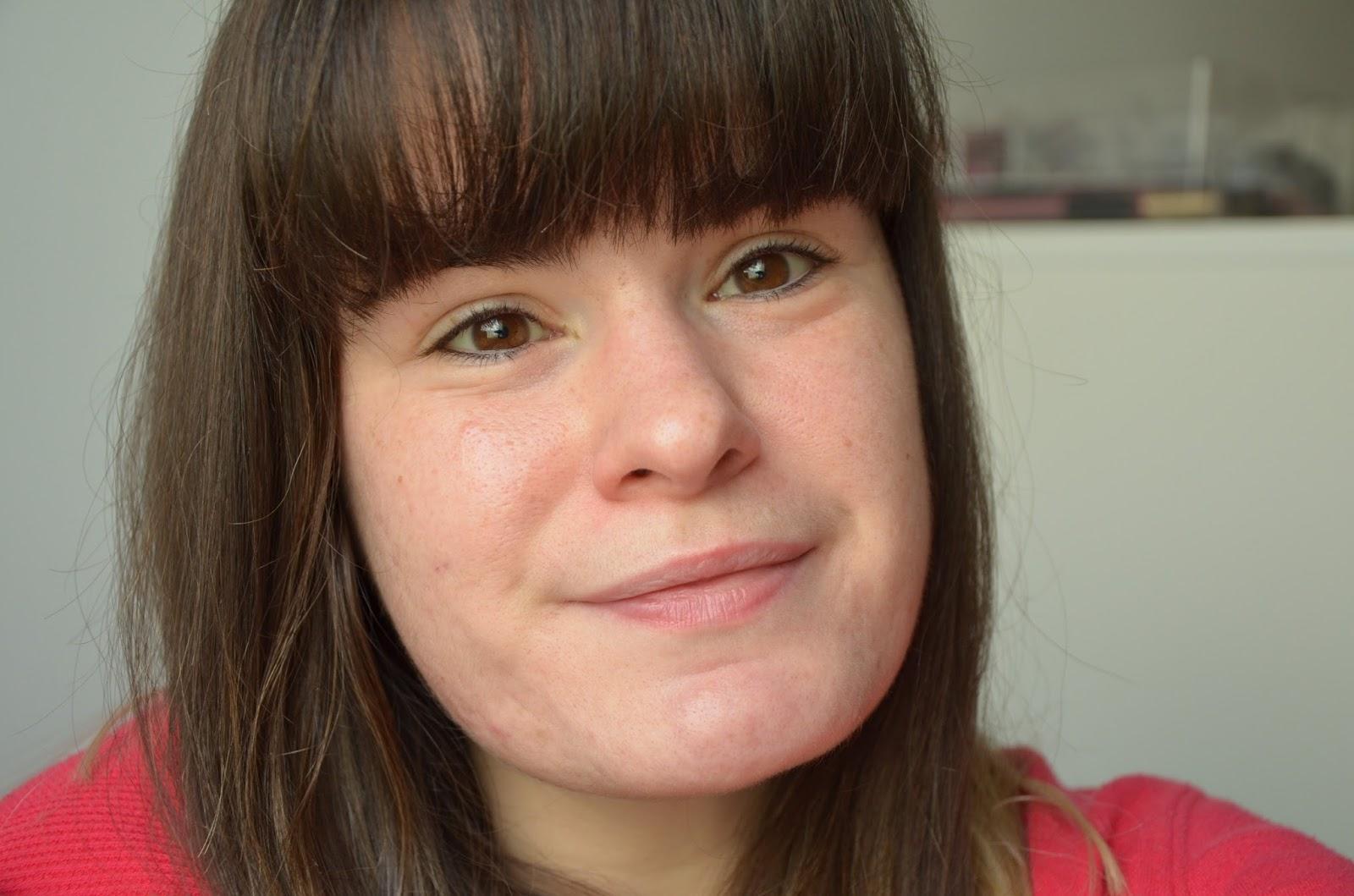 bilan 1 an de traitement contre l'acné