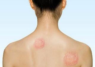 Cual es el tratamiento para la enfermedad de Lyme