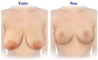 Có nên nâng ngực chảy xệ không