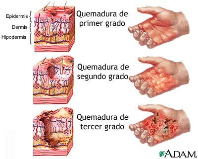 Calculo renal sintomas yahoo dating 1