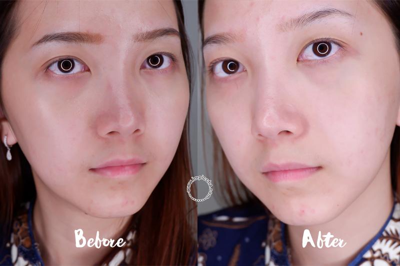 Review Rubiena Brightening Series Skincare