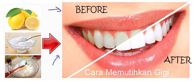 Cara Untuk Memutihkan Gigi Dengan Mudah Brad Erva Doce Info
