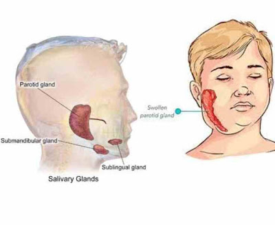 What is MUMPS (Segede in Yoruba)? Plus Signs and Symptoms, Causes, Management and Medical Treatment