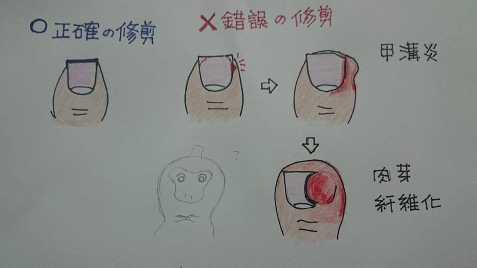 黃琬茹醫師手繪衛教 之 甲溝炎患者 指甲修剪注意事項