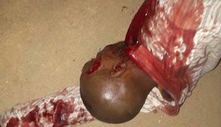 www.physinews. stabbed customer 2