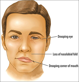 Facial Nerve Palsy Symptoms - 7th Cranial Nerve,