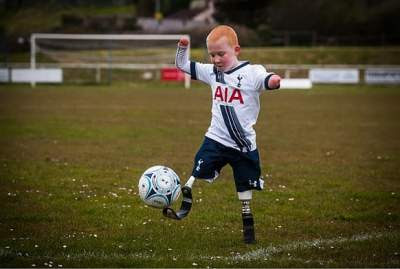No hands, no legs, he's training with Spurs before Saints game