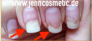 Nagelpilz-erkennen-2-jenncosmetic