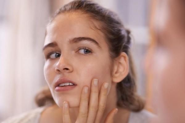 Ganggu Penampilan Ini 5 Tips Simpel Cegah Jerawat Muncul di Wajah
