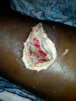 Update: The 16-year-old girl stabbed by a young man in Delta State because she rejected him, is dead (photos)