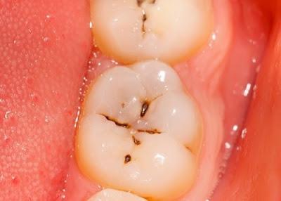 bị sâu răng có nên trám không -1