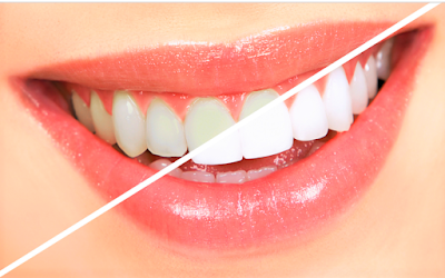 Benefits of Bleaching on teeth