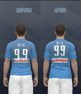S.S.C Napoli Kit + Fix