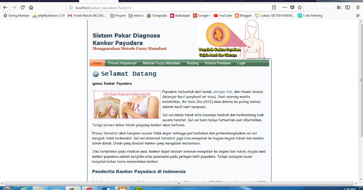 Piramida Skripsi: Sistem Pakar Diagnosa Kanker Payudara Metode Fuzzy ...