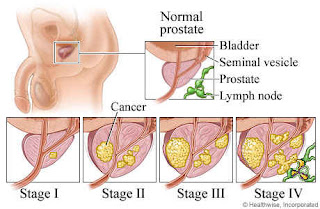Inilah Pengobatan Kanker Prostat Secara Alami Tanpa Operasi