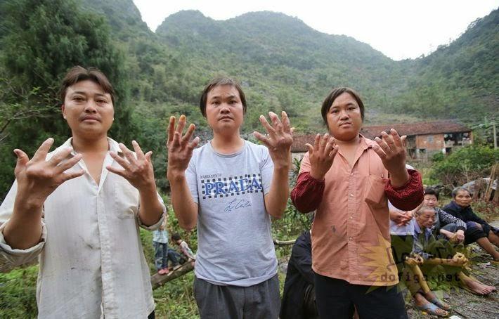 Extraña enfermedad en un pueblo chino