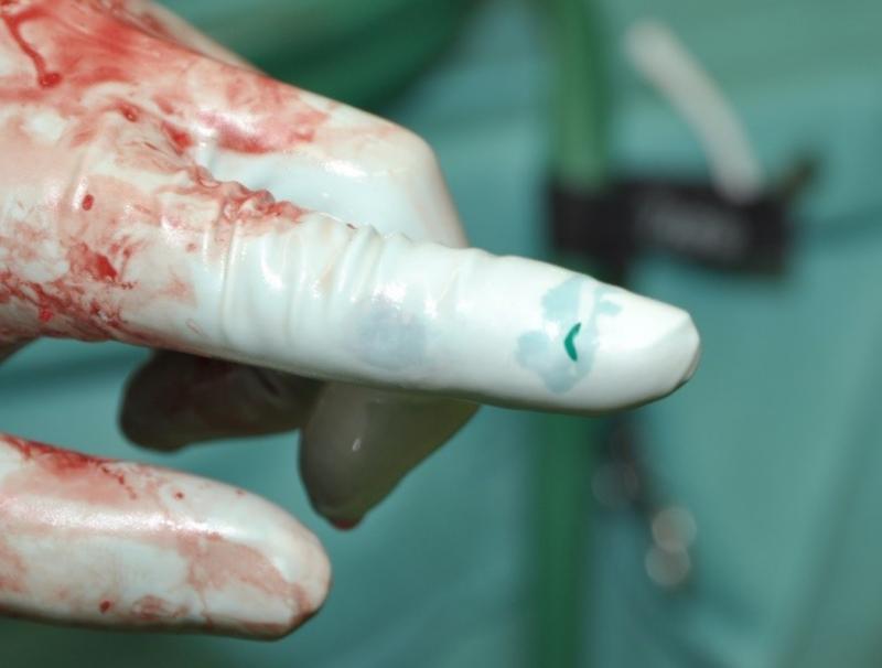 rodzaje rekawiczek ochronnych używanych przez personel medyczny