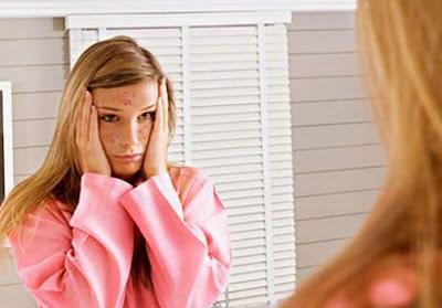 Masalah Kulit Yang Bikin Wanita Menjadi Tidak Percaya Diri
