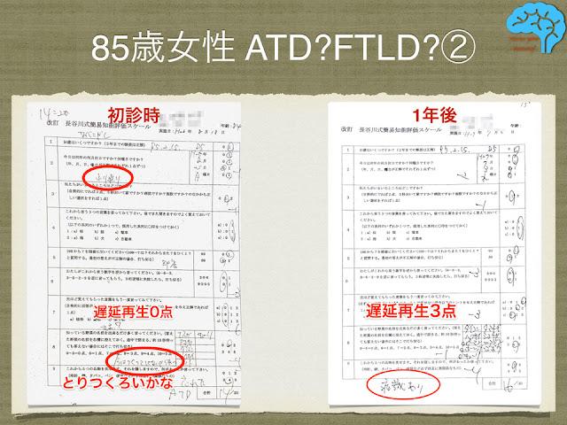 長谷川式簡易痴呆スケールは、一年で点数上昇