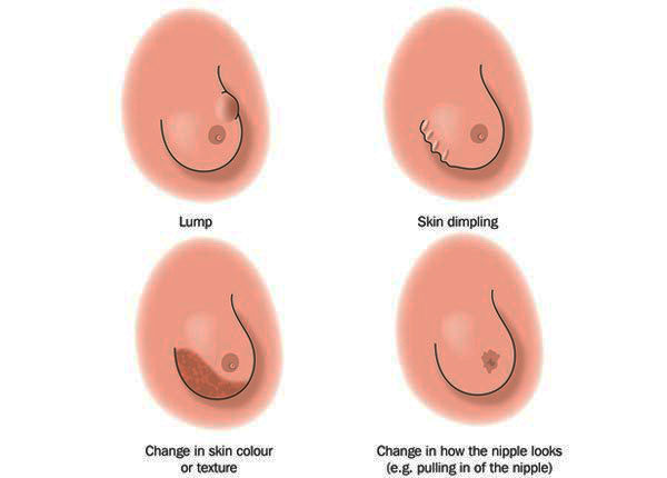 What Is Breast Lumps Get Information About Types Of -6974
