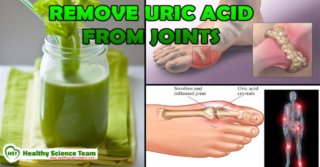 diet for high uric acid and triglyceride foods to avoid gout pain gout pain behind knee