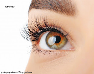 vitreolizis
