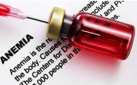 Simptom Kurang Darah (Anemia) dan Cara Mengatasinya