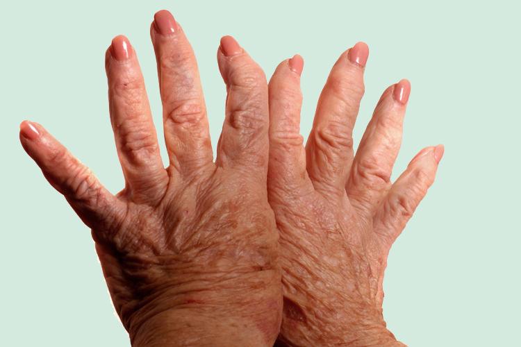 Plantas Medicinales Ruth Ajo Japones Artritis Rehumatoide