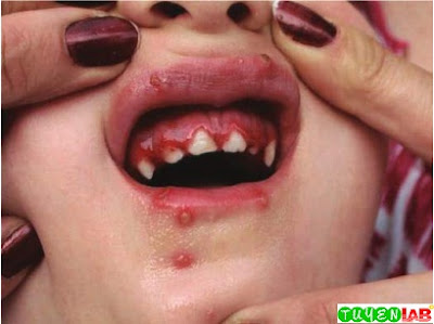 HSV stomatitis in the same child. Note the marked gingival edema, characteristic of a primary HSV infection.