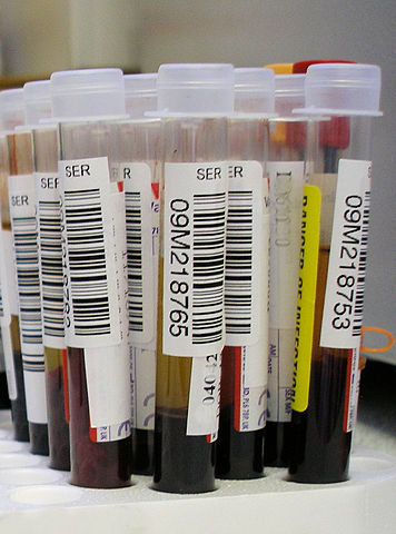 Ob Gyn Updated Novel Blood Test To Detect Ovarian Cancer At An Early Stage Shows Promising Results
