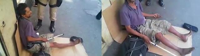 """Mostra a perna! Aleijado volta a ter perna após """"milagre"""" da  Guarda Municipal do Rio de Janeiro"""
