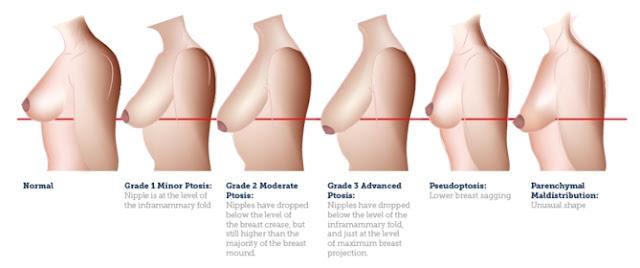 胸部下垂分級程度表
