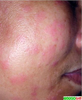 Facial rash of dengue fever.