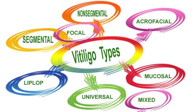 vitiligo-types