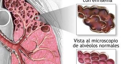 ¿que es enfisema pulmonar