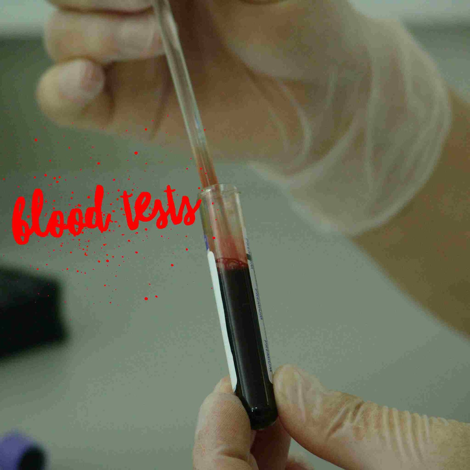 Laboratory blood studies