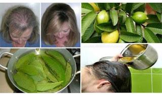 shampo rambut rontok,  obat rambut rontok parah,  cara mengatasi rambut rontok berlebihan,  cara mengatasi rambut rontok dan kering,  cara merawat rambut rontok dan berketombe,  vitamin untuk rambut rontok,  cara mengatasi rambut rontok pada pria, mengatasi rambut rontok berjilbab