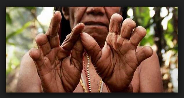 Tradisi Potong Jari Di Suku Dani