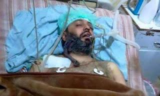 Syahidnya Dr. Nabil Da'as, seorang doktor pakar di Ghoutah selepas sembilan hari berjuang dengan kesakitan akibat daripada terkena peluru sesat di dalam rumahnya.