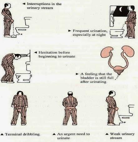 Hel homeopátia prostatitis