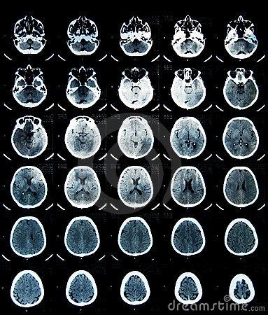 brain cat scan-#36