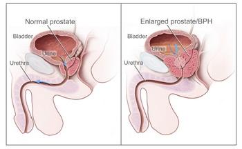 disminución de la próstata agrandada