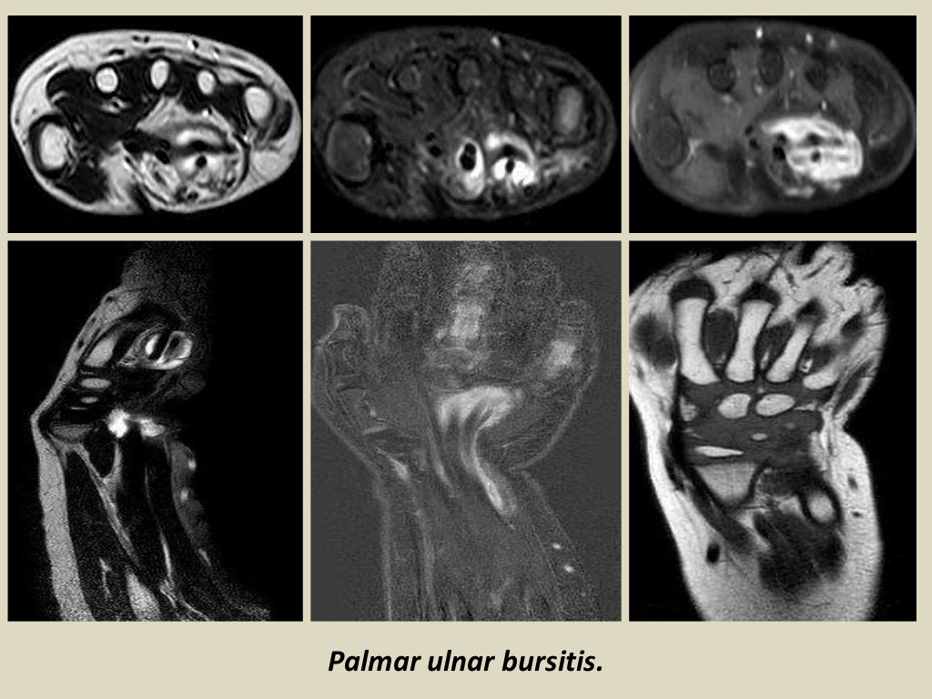 MRI Musculo-Skeletal Section: Bursa of the wrist joint