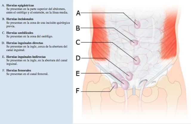 Aprende de una manera fácil las Hernias de la Pared Abdominal. Medicina mnemotecnias